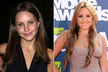 Amanda Bynes Nose Job Before After