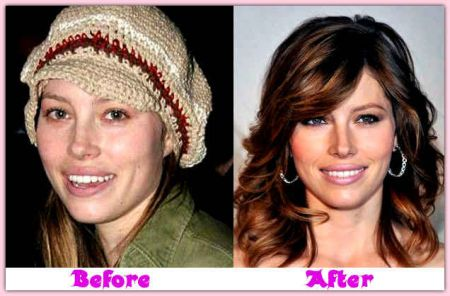 Jessica biel nose job before after
