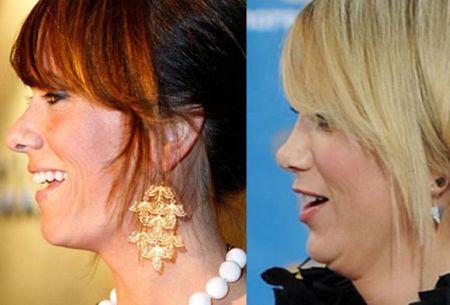 Kristen Wiig Nose Job Before After