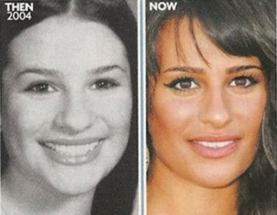 Lea Michele nose job before and after