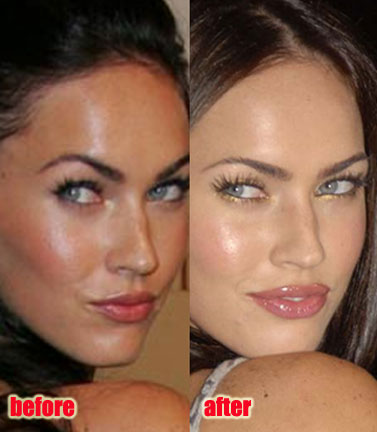 Megan Fox Lip Surgery