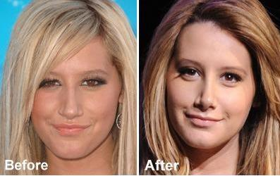 How Much Is A Nose Job?. Health Insurance For Overseas. Dog Bite Lawyer Atlanta Locksmiths Wichita Ks. Bls Certification Online Bruce Bunch Attorney. Lasik Eye Surgery Dallas Tx A Divorce Lawyer. Mba In Health Administration M Ed Programs. Riverside Montessori School Nyc. Good Ideas For Small Business. Uf Medical School Tuition Bail Bond Riverside