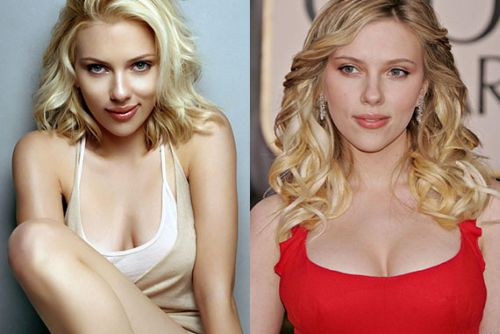 Young Breast Augmentation Before And After Scarlett Johansson Nos...