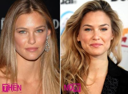Bar Rafaeli plastic surgery before and after