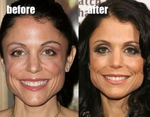 Bethenny Frankel Botox Before and After