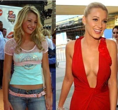 Blake Lively breast implants before and after