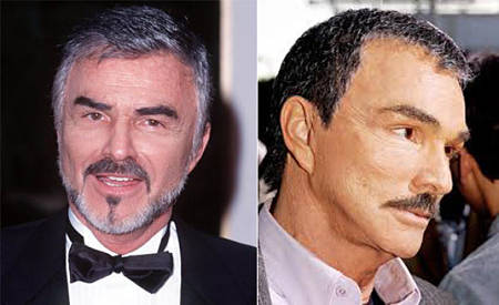 Burt Reynolds facelift and Botox injections before and after