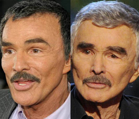 Burt Rreynolds Plastic Surgery Fail