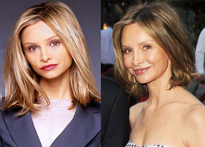 Calista Flockhart Nose Job Before and After