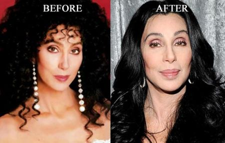 Cher botox injections