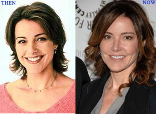 Christa Miller plastic surgery before and after