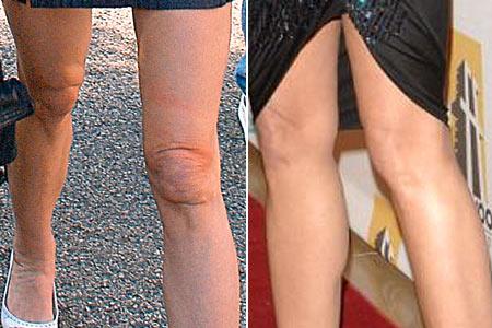 Demi Moore Knee Liposuction