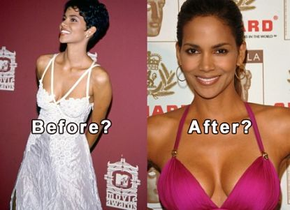 Halle Berry Breast Implants Before and After