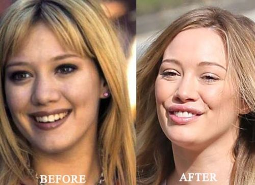 Hillary Duff Rhinoplasty & Lip Augmentation