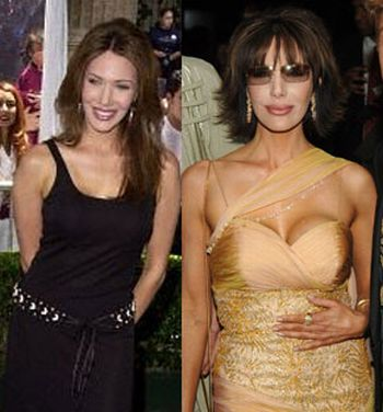 Hunter Tylo breast implants before and after