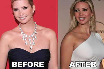 Ivanka Trump breast implants