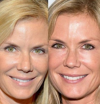 Katherine Kelly Lang before and after Plastic Surgery