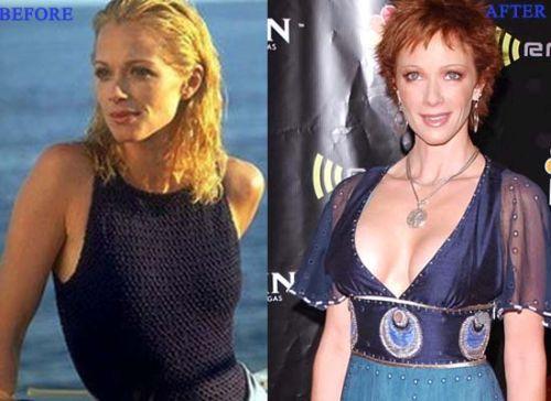 Lauren Holly plastic surgery (breast implants)