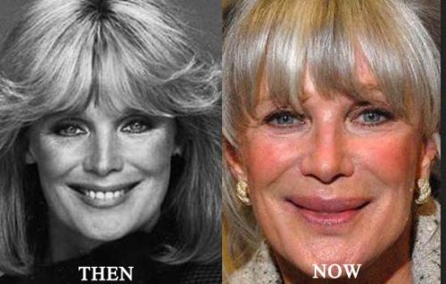 Linda Evans then and now!