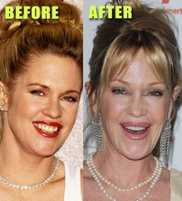 Melanie Griffith plastic surgery fail