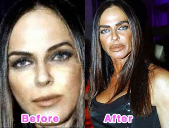 Michaela Romanini surgery before & after