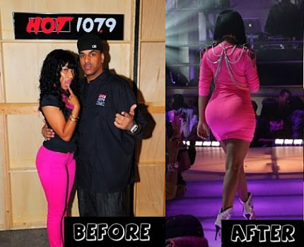 Nicki Minaj Butt implants before and after