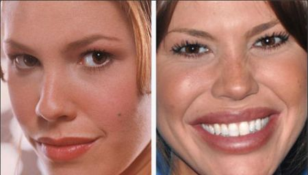 Nikki Cox plastic surgery disaster