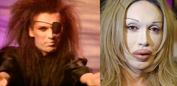 Pete Burns surgery before & after