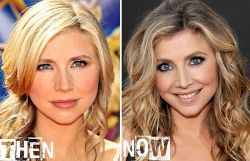 Sarah Chalke Plastic Surgery Before & After
