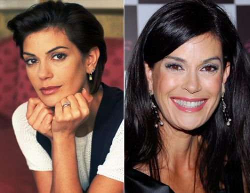Teri Hatcher Plastic Surgery Before After