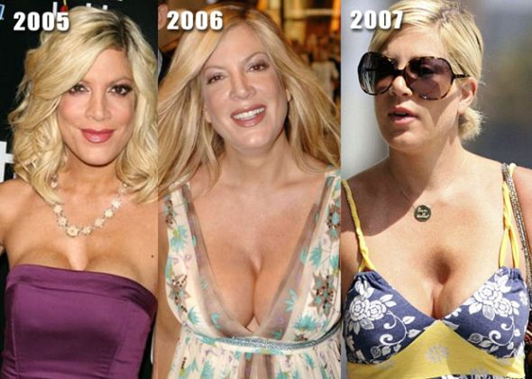Tori Spelling breast implants gone bad