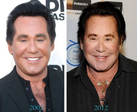 Wayne Newton S Unsuccessful Plastic Surgery