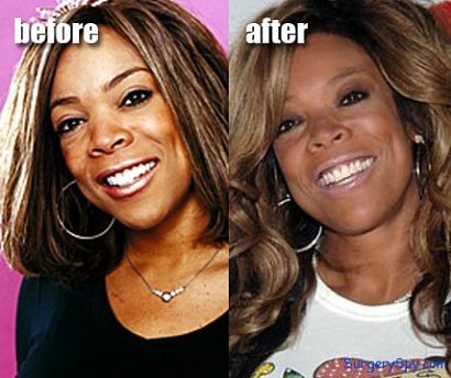 Wendy Williams Facial Plastic Surgery before and after