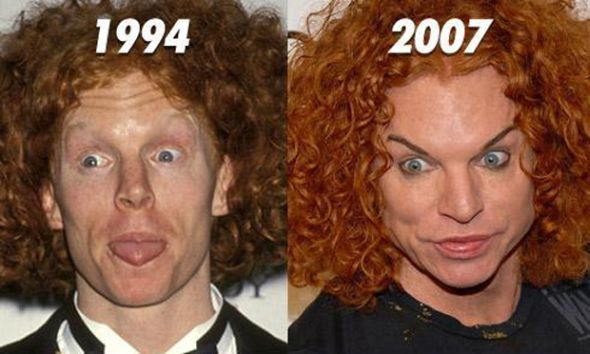 Scott Thompson plastic surgery