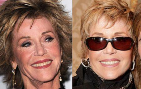 Jane Fonda surgery