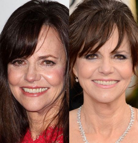 Sally Field Plastic Surgery Giving Her a Youthful Outlook