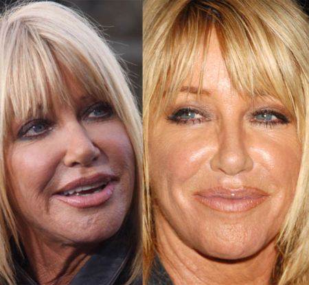 Suzanne Somers Plastic Surgery Attribute Of Her New Look