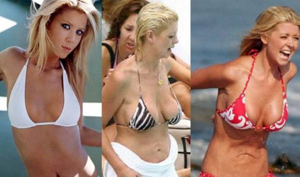Tara Reid plastic surgery disasters
