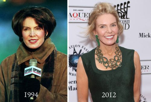 Leslie Visser plastic surgery before after