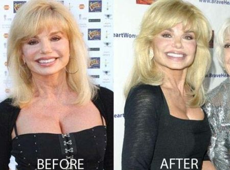 Loni Anderson Breast Reduction Before and After