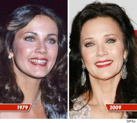 Lynda Carter Plastic Surgery