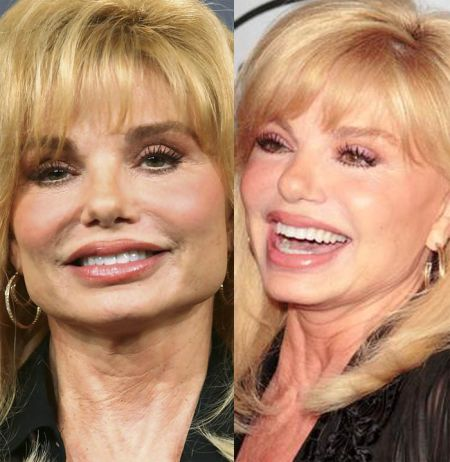 Loni Anderson plastic surgery before & after