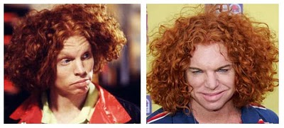 carrot top plastic surgery disaster