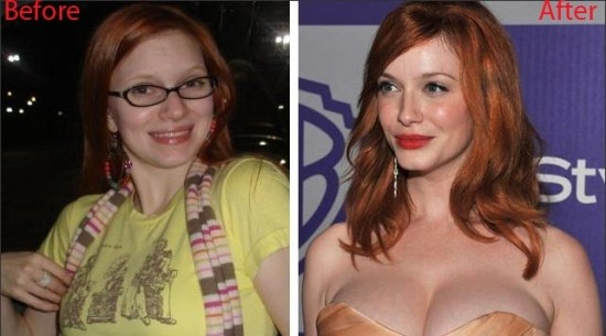 christina hendricks plastic surgery before after