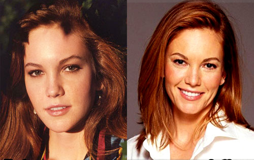 diane lane plastic surgery