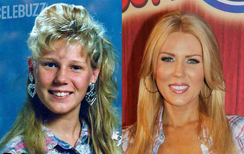 gretchen rossi plastic surgery before after