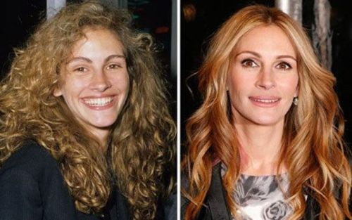 julia roberts plastic surgery lips