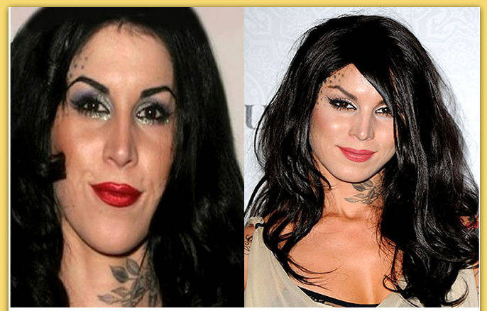Kat-Von-D-Plastic-Surgery-Before-And-After  3