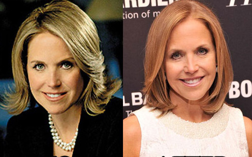 Katie Couric plastic surgery