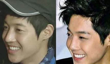 Kim Hyun Joong nose job